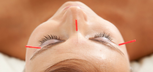 All too often, Western medicine's view of acupuncture is that of...