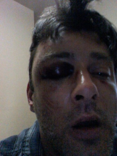 Another Gay Bashing In New York, Sixth This Month Full story here: http://www.queerty.com/another-gay-bashing-in-new-york-sixth-this-month-20130521/#ixzz2TyJ11ZFc