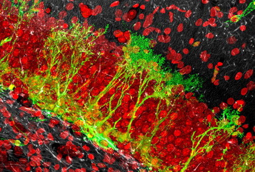 In the hippocampus, neural stem cells (green) sit in a layer below their progeny, the granule neurons (red). When activated by extrinsic stimuli, they enter mitosis and generate neuron progenitor cells, which eventually mature into neurons and migrate into the layer above. The number of neural stem cells in the hippocampus decreases over time, possibly contributing to the cognitive impairment associated with aging. One hypothesis is that, after a rapid series of divisions, these neural stem cells disappear via their conversion into astrocytes. Image: Section of a mouse hippocampus imaged with Zeiss LSM 50 confocal microscope with a 40X C-Apochromat water-immersion objective lens (N.A. value 1.2, working distance 220 microns) at 62x magnification. Brain slices were fixed in 4% paraformaldehyde, immunolabeled, and then cleared in FocusClear (CelExplorer, Taiwan).