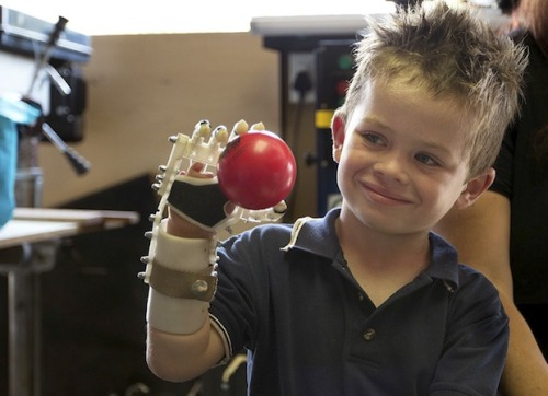 futurist-foresight:  DIY bionics as a step towards fully integrated neural linked systems. alexob:  DIY bionics - making kids smile again. See the joy in Liam's eyes as he is grasping a ball with his right hand for the first time. By the time this cute fellow grows up, he will have a bionic hand that will be connected to his neural-system and be indistinguishable from his biological body; but all Liam cares about for now his being able to play ball.