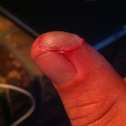 I kinda cut my finger at work today :(