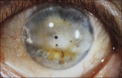 lessons-in-gore:  Band keratopathy involving the interpalpebral cornea in a patient with juvenile arthritis and chronic anterior uveitis.