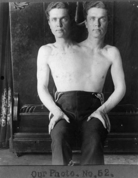 Trick photo of a man with two heads, via Retronaut.
