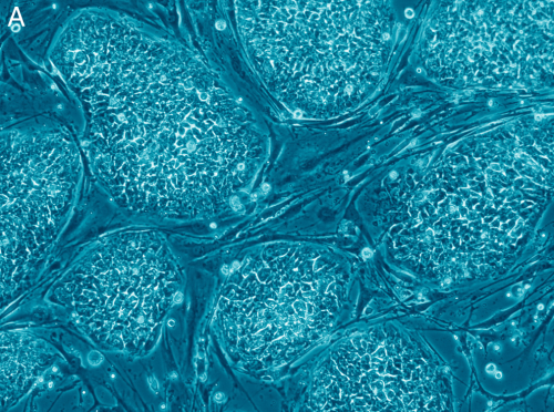 "scinerds:  Scientists Report First Success in Cloning Human Stem Cells  It's been 17 years since Dolly the sheep was cloned from a mammary cell. And now scientists applied the same technique to make the first embryonic stem cell lines from human skin cells. Ever since Ian Wilmut, an unassuming embryologist working at the Roslin Institute just outside of Edinburgh stunned the world by cloning the first mammal, Dolly, scientists have been asking – could humans be cloned in the same way? Putting aside the ethical challenges the question raised, the query turned out to involve more wishful thinking than scientific success. Despite the fact that dozens of other species have been cloned using the technique, called nuclear transfer, human cells have remained stubbornly resistant to the process. Until now. Shoukhrat Mitalipov, a professor at Oregon Health & Science University and his colleagues report in the journal Cell that they have successfully reprogrammed human skin cells back to their embryonic state. The purpose of the study, however, was not to generate human clones but to produce lines of embryonic stem cells. These can develop into muscle, nerve, or other cells that make up the body's tissues. The process, he says, took only a few months, a surprisingly short period to reach such an important milestone. Nuclear transfer involves inserting a fully developed cell – in Mitalipov's study, the cells came from the skin of fetuses – into the nucleus of an egg, and then manipulating the egg to start dividing, a process that normally only occurs after it has been fertilized by a sperm. After several days, the ball of cells that results contains a blanket of embryonic stem cells endowed with the genetic material of the donor skin cell, which have the ability to generate every cell type from that donor. In Dolly's case, those cells were allowed to continue developing into an embryo that was then transferred to a ewe to produce a cloned sheep. But Mitalipov says his process with the human cells isn't designed to generate a human clone, but rather just to create the embryonic stem cells. These could then be manipulated to create heart, nerve or other cells that can repair or treat disease. ""I think this is a really important advance,"" says Dieter Egli, an investigator at the New York Stem Cell Foundation. ""I have a very high confidence that versions of this technique will work very well; it's something that the field has been waiting for."" Egli is among the handful of scientists who have been working to perfect the technique with human cells and in 2011, succeeded in producing human stem cells, but with double the number of chromosomes. In 2004, Woo Suk Hwang, a veterinary scientist at Seoul National University, claimed to have succeeded in achieving the feat, but later admitted to faking the data. Instead of generating embryonic stem cell lines via nuclear transfer, Hwang's group produced the stem cells from days-old embryos, a technique that had already been established by James Thomson at University of Wisconsin in 1998.  Full Article"