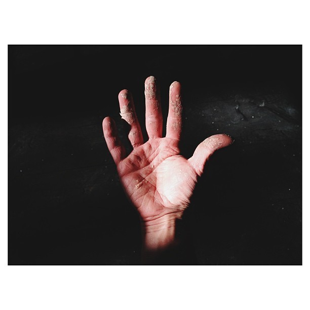 #bondo on #hand #vsco #vscocam