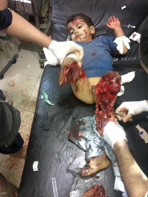 Graphic  leaveobashar:  He was struck by a shell form Assad's forces in Aleppo, Syria. Both of his legs are gone. One was blown off immediately, the other is being cut off as it dangles. Assad took this little boy's childhood away from him. He will never know the joy of running or walking or doing anything 'normal' kids again …  Thanks @luv2live2