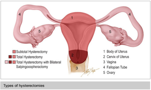 neutrois:  What is a Hysterectomy? Part 1 of 3 in an article series by and for transpeople. View Post
