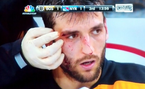 blovedgaze:  Bergy being attended to