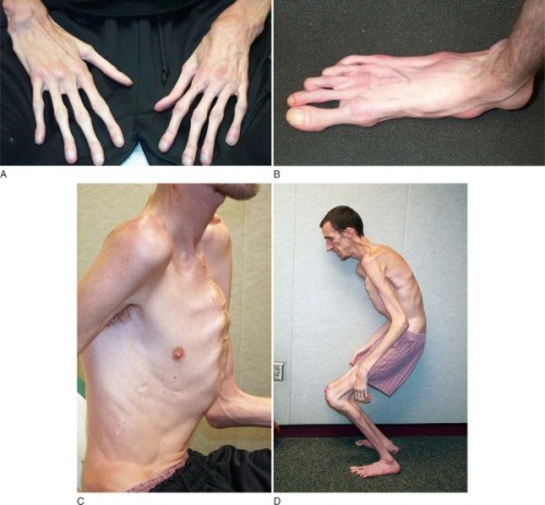sharkchunks:  gregorey:  Marfan syndrome (also called Marfan's syndrome) is a genetic disorder of the connective tissue. People with Marfan tend to be unusually tall, with long limbs and long, thin fingers… Read more on wikipedia.  I've never seen arachnodactyly's foot counterpart.