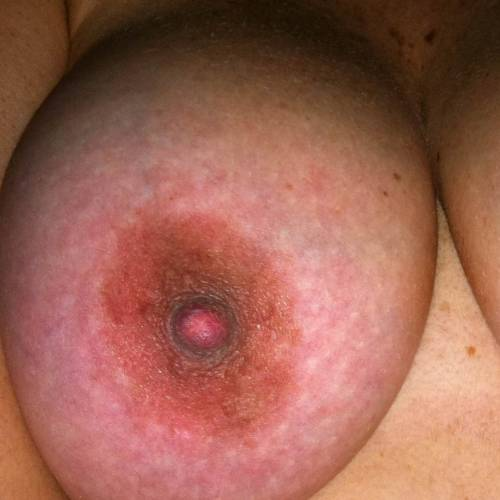 a beautiful closeup by anon!!! thank you for submitting!!! ☆ Post Your Nips! ☆