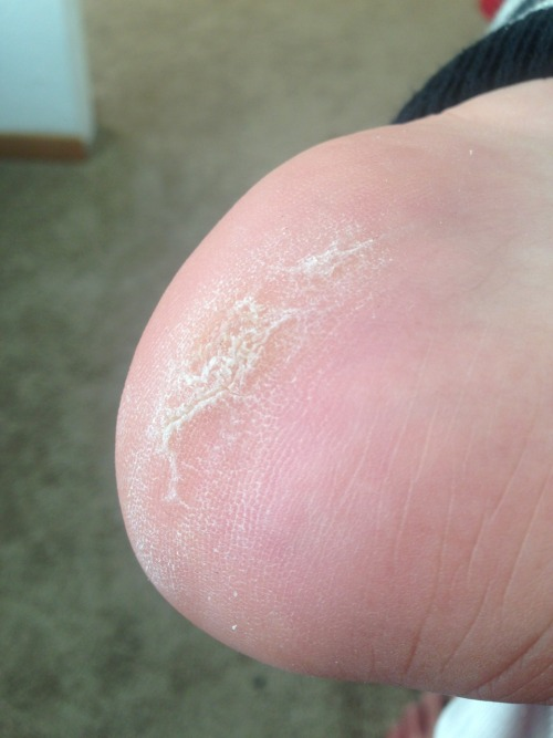 This is the sole of a person who works 16 hour days. (But on their knees for 2)