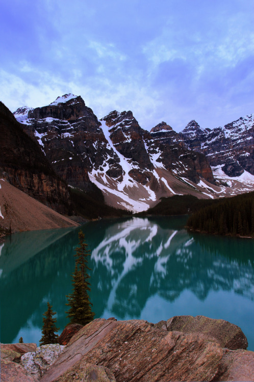 stimulative:  Moraine Lake Banff Alberta (by Gladwin Johnson)