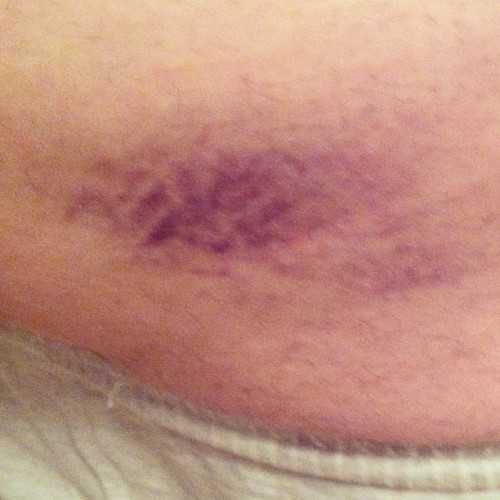 Robbie's first derby bruise. Right butt cheek. #wimp