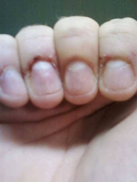 The nails of anxiety. Little pieces of flesh turned into chunks of bloody soreness. You know what I'm talking about.Nibbling on the loose skin of your fingertips and pulling, sometimes barely even noticing when it starts to bleed.