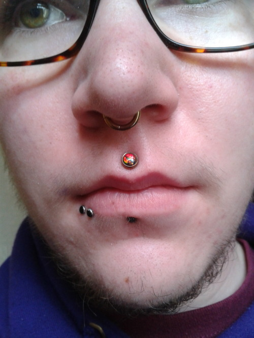 This photo was actually taken to show one of my new anatometal philtrum ends, but it also shows my beard growth quite nicely. For the curious, this appears to be as much facial hair as I'm currently capable of growing, and this is after 1 year and 5 months of T.
