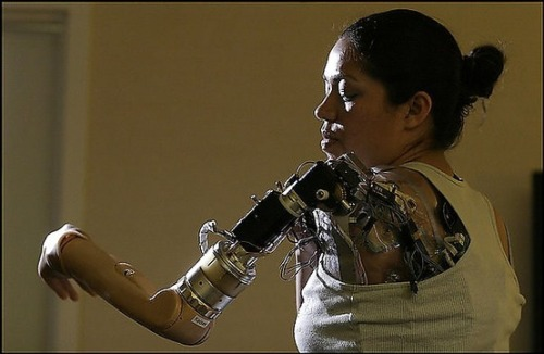 cyberneticsarenow:  Claudia Mitchell - first woman to have a bionic arm - a prosthetic limb that she controls with her mind.