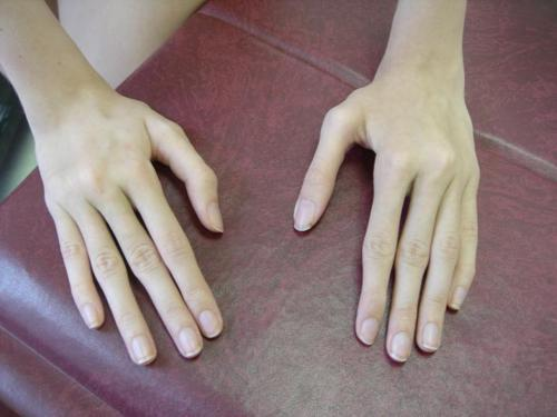 "spookyalfie:  Arachnodactyly, or ""spider fingers"", is a condition in which the fingers are abnormally long and slender in comparison to the palm of the hand."