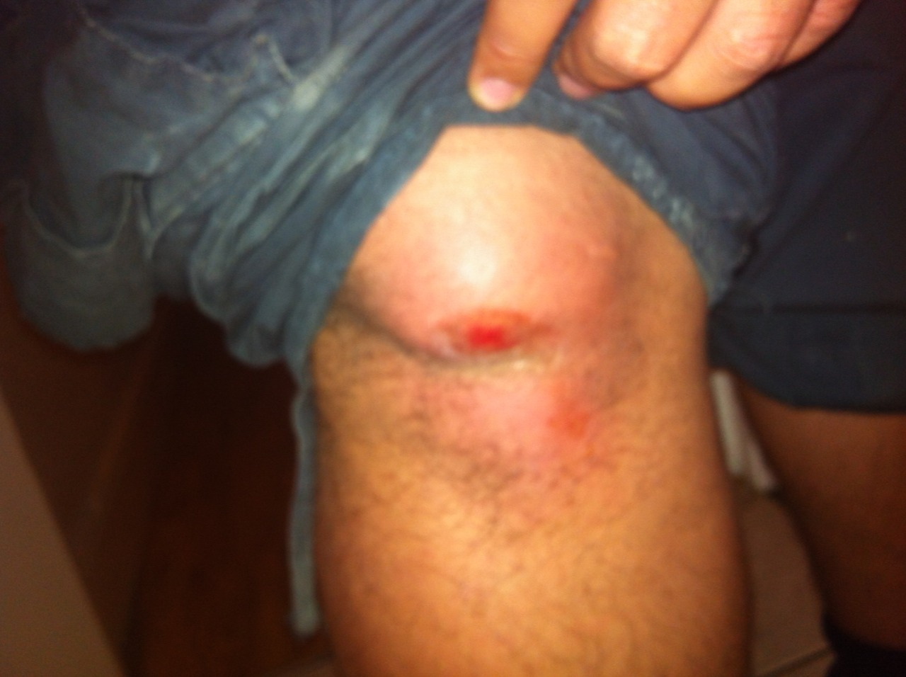 Ahhhhhhh in summer 2012 I proper mashed up my knee skated, it actuallly look like my knee had another knee dude.  Took about 2 weeks off after this I couldn't walk at all.  PEEEAAKKKKKKK  U had any mad injuries???