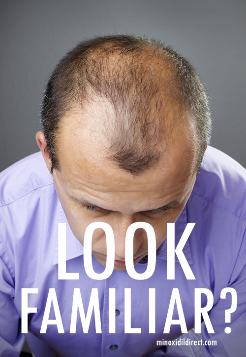 kaydee2075:  My father was balding and it was quite the family joke till he started using Minoxidil 5% and now my brother is balding and he has become the joke!  Minoxidil Direct has truly saved me from a life of embarrassment! Balding runs in my family male and female so when my mom told me about this product and showed me that it worked I just had to share! Look up Minoxidil Direct for all the information!