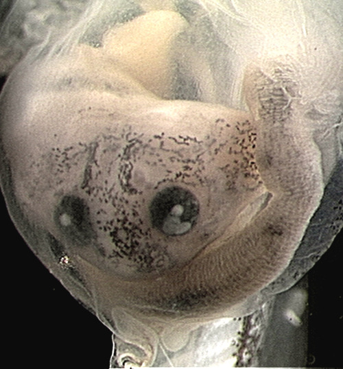 freshphotons:  The face of an unfortunate Budgett's frog tadpole that is being digested inside the stomach of its larger sibling. Via.