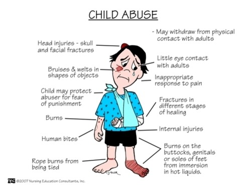 nursetinkerbell:  How to Recognize a Child Abuse Child???
