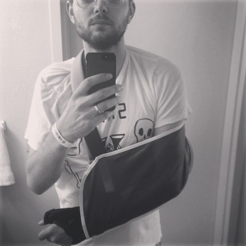BROKEN ELBOW IN TAMPA TOUR 2013