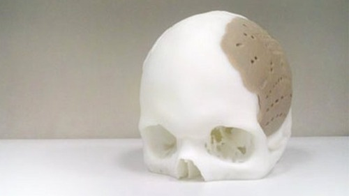 thisistheverge:  3D-printed implant used to replace 75 percent of man's skull A 3D-printed implant was used to replace 75 percent of a man's skull in a surgical procedure earlier this week. The prosthetic was constructed using an additive printing process, and was implanted following manufacturer Oxford Performance Materials receiving FDA approval to use the technology last month.   I wonder how sounds sound to this person now.