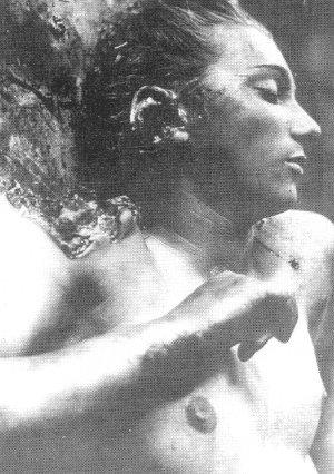 PODJARKOW, pow. Bóbrka, woj. lwowskie. 16 sierpień 1943 Kleszczyńska, członek polskiej rodziny w Podjarkowie -ofiara napadu OUN-UPA. Skutek ciosu siekiery napastnika usiłującego odrąbać prawą rękę i ucho oraz zadawanych mąk - okrągła rana kłuta na...