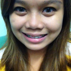 Square 😒 #braces #green #redviolet (at Brillante Dental Clinic)