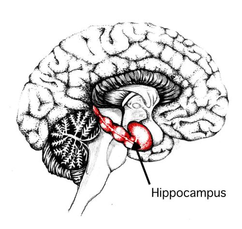 "Portion of Hippocampus Found to Play Role in Modulating Anxiety Columbia University Medical Center (CUMC) researchers have found the first evidence that selective activation of the dentate gyrus, a portion of the hippocampus, can reduce anxiety without affecting learning. The findings suggest that therapies that target this brain region could be used to treat certain anxiety disorders, such as panic disorder and post-traumatic stress syndrome (PTSD), with minimal cognitive side effects. The study, conducted in mice, was published in the online edition of the journal Neuron. The dentate gyrus is known to play a key role in learning. Some evidence suggests that the structure also contributes to anxiety. ""But until now no one has been able to figure out how the hippocampus could be involved in both processes,"" said senior author Rene Hen, PhD, professor of neuroscience and pharmacology (in psychiatry) at CUMC. ""It turns out that different parts of the dentate gyrus have somewhat different functions, with the dorsal portion largely dedicated to learning and the ventral portion dedicated to anxiety,"" said lead author Mazen A. Kheirbek, PhD, a postdoctoral fellow in neuroscience at CUMC. To examine the role of the dentate gyrus in learning and anxiety, the investigators used a state-of-the-art technique called optogenetics, in which light-sensitive proteins, or opsins, are genetically inserted into neurons in the brains of mice. Neurons with these genes can then be selectively activated or silenced through the application of light (via a fiber-optic strand), allowing researchers to study the function of the cells in real time. Previously, the only way to study the dentate gyrus was to silence portions of it using such long-term manipulations as drugs or lesions, techniques that yielded conflicting results. In the current study, opsins were inserted into dentate gyrus granule cells (the principal cells of the dentate gyrus). The researchers then activated or silenced the ventral or dorsal portions of the dentate gyrus for three minutes at a time, while the mice were subjected to two well-validated anxiety tests (the elevated plus maze and the open field test). ""Our main findings were that elevating cell activity in the dorsal dentate gyrus increased the animals' desire to explore their environment. But this also disrupted their ability to learn. Elevating activity in the ventral dentate gyrus lowered their anxiety, but had no effect on learning,"" said Dr. Kheirbek. The effects were completely reversible — that is, when the stimulation was turned off, the animals returned to their previous anxiety levels. ""The therapeutic implication is that it may be possible to relieve anxiety in people with anxiety disorders by targeting the ventral dentate gyrus, perhaps with medications or deep-brain stimulation, without affecting learning,"" said Dr. Hen, who is also director of the Division of Integrative Neuroscience, the New York State Psychiatric Institute, and a member of The Kavli Institute for Brain Science. ""Given the immediate behavioral impact of such manipulations, these strategies are likely to work faster than current treatments, such as serotonin reuptake inhibitors."" According to Dr. Hen, such an intervention would probably work best in people with panic disorder or PTSD. ""There is evidence that people with these anxiety disorders tend to have a problem with pattern separation — the ability to distinguish between similar experiences,"" he said. ""In other words, they overgeneralize, perceiving minor threats to be the same as major ones, leading to a heightened state of anxiety. Such patients could conceivably benefit from therapies that fine-tune hippocampal activity."" Dr. Hen and his team are currently exploring strategies aimed at modulating the activity of the ventral dentate gyrus by stimulating neurogenesis in the ventral dentate gyrus. ""Indeed the dentate gyrus is one of the few areas in the adult brain where neurons are continuously produced, a phenomenon termed adult hippocampal neurogenesis,"" added Dr. Hen. (Image: Catherine E. Myers, Memory Loss and the Brain)"
