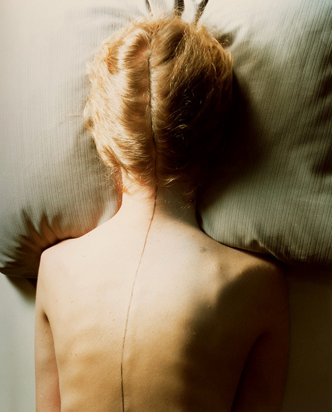 somedisordered:  Jo Ann Callis