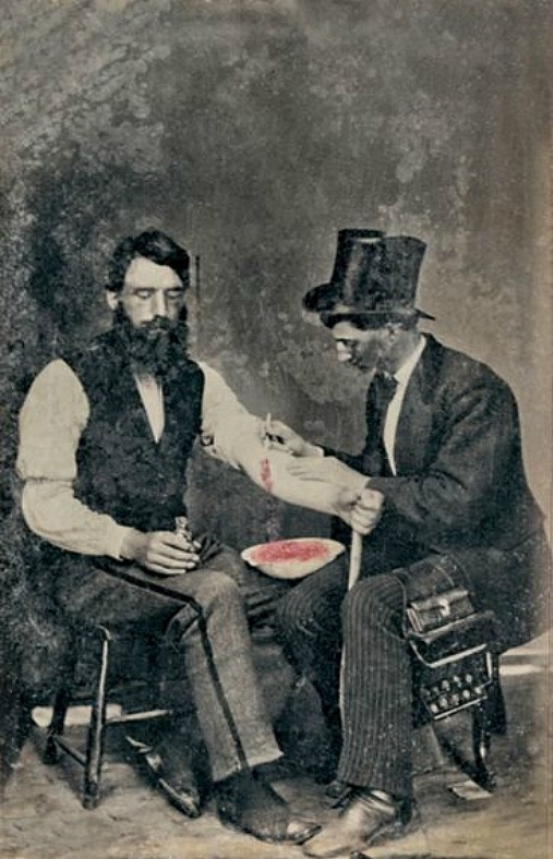 Bloodletting in 1860, One Of Only Three Known Photographs Of The Procedure In eighteenth- and nineteenth-century America, many symptoms of illness were believed to be caused by an excess of blood: the removal of some was therefore thought to alleviate the condition. There were two main methods of bloodletting: using leeches and venesection (i.e. cutting open a vein). Bloodletting is achieved by fleams, scarificators, cupping glasses, leeches, and assorted instruments.  If you search for 'bloodletting' in the Medical and Surgical History of the War of the Rebellion not that much shows up. However if you search for 'venesection', then many citations pro and con as well as actual cases are found. Bloodlettingorvenesectionwas practiced through out the Civil War, because when the War started, bleeding was an accepted practice in the medical community. As the war progressed, evidence based treatment was leaning against the use of bleeding for various medical or surgical problems as reported in the Medical and Surgical History. Source: Bloodletting (Venesection) During the Civil WarBy Dr. Michael Echols, Photograph WIKI