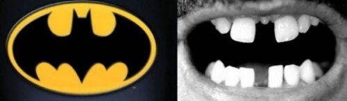 "Teeth Gap Looks Like Bat Signal ""Help, Batman!"" is one of many things those chompers express."