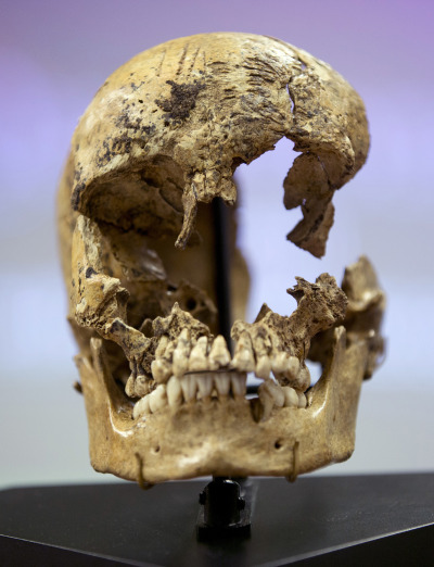 "scinerds:  Scarred skull reveals cannibalism at Jamestown colony  It sounds like the stuff of a horror movie: cannibalism, and in Jamestown, Virginia, the oldest English settlement in North America. In 1609, as the colonists were still adjusting to their new home, they were caught in the grip of a brutal winter that has become known as ""the starving time"". The recently unearthed bones of a 14-year-old girl sheds light on the unfortunate story of how people survived. William Kelso, chief archaeologist at the Jamestown Rediscovery Project , found the remains and Douglas Owsley, division head for physical anthropology at the Smithsonian National Museum of Natural History, used marks on the girl's skull and tibia to show that she had been the victim of cannibalism. Her skeleton provides the first tangible evidence of this in Jamestown, corroborating existing written accounts. Researchers were unable to determine exactly how she died, but her remains did reveal a bit about her life. She was from the south coast of England, and, an analysis of isotopes in her bones suggests, enjoyed a high-protein diet – and so was probably from an upper-class family. As famine spread in Jamestown, 80 per cent of the residents died. Some turned to leather straps from their clothes and household animals for sustenance. But when even those resources petered out, the colonists were forced to choose between starvation or surviving off the remains of those whom the brutal winter killed."