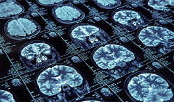 Artificial Intelligence for Medical Imaging Market to Top $2B https://www.nanoappsmedical.com/artificial-intelligence-for-medical-imaging-market-to-top-2b/