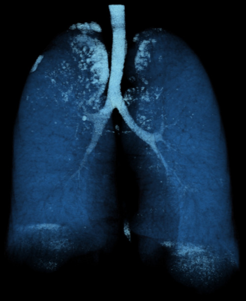 Lungs Volume Rendering of an ECG gated I.V. contrast enhanced thoracic CT angiography. Pictured above is the lung. The lung shows several small emphysematous bullae.