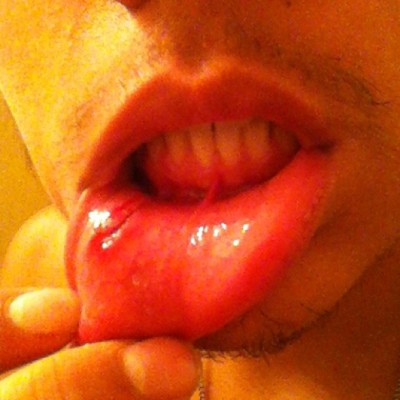 Busted lip from AttackAttack's last tour ever and last concert in Texas ever! Good ass night!