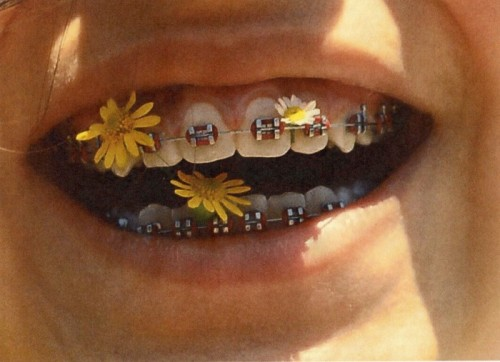 snlofficial:  why would u put flowers in ur braces  ew I can see the hair getting caught in them omg that makes me gag