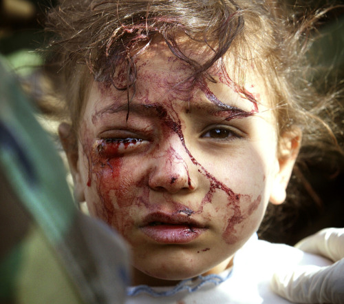 A wounded Iraqi girl is treated by U.S. marines in central Iraq, on March 29, 2003. The four-year old girl, blood streaming from an eye wound, was screaming for her dead mother, while her father, shot in a leg, begged to be freed from the plastic wrist cuffs slapped on him by U.S. marines, so he could hug his other terrified daughter.