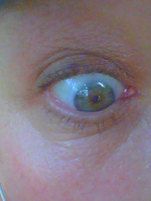 Can someone tell me if there's a bug, or 20, in my eye?