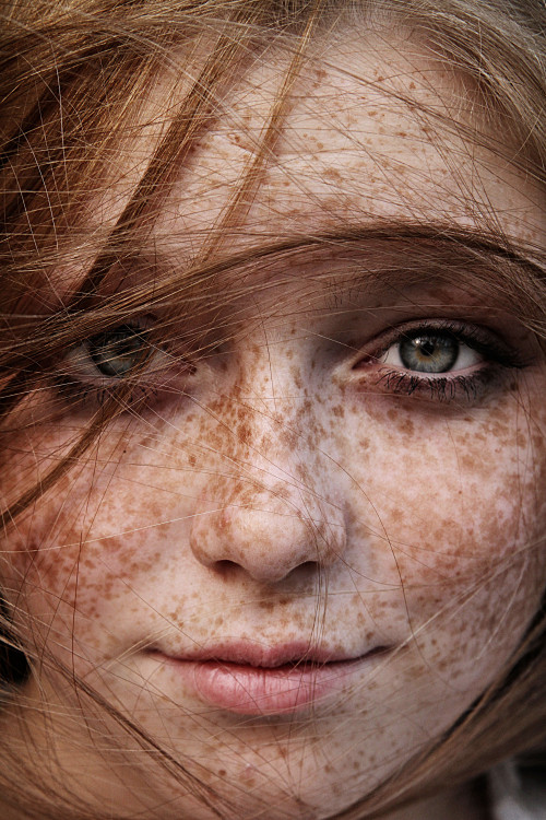 loskind:  frecklemania in highest resolution