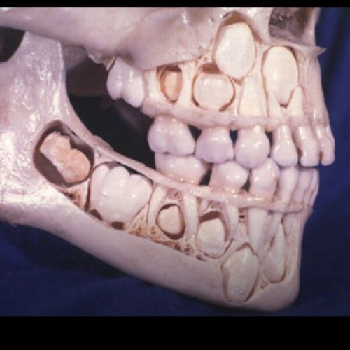 instanba:  HOW A KIDS SCULL LOOK WHEN THEY STILL HAVE BABY TEETH! CREEPY! :: http://ift.tt/1cXCtaa