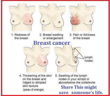a-littles-black-book:  Symptoms of Breast Cancer.This should belong on everybody's blog, this information isn't common enough. -Bunny