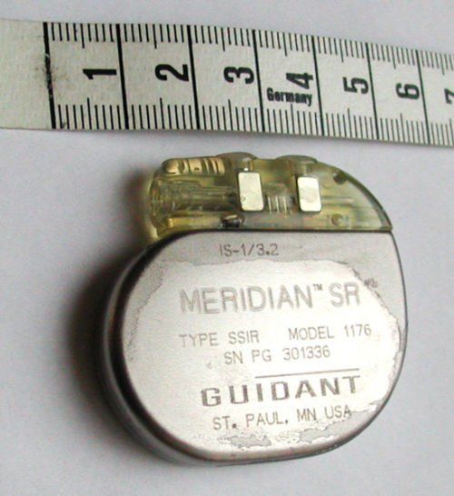 medicalschool:  An artificial pacemaker is a medical device that uses electrical impulses, delivered by electrodes contacting the heart muscles, to regulate the beating of the heart. The primary purpose of a pacemaker is to maintain an adequate heart rate, either because the heart's native pacemaker is not fast enough, or there is a block in the heart's electrical conduction system. Modern pacemakers are externally programmable and allow the cardiologist to select the optimum pacing modes for individual patients. Some combine a pacemaker and defibrillator in a single implantable device. Others have multiple electrodes stimulating differing positions within the heart to improve synchronisation of the lower chambers(ventricles) of the heart.