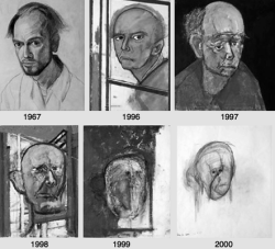 gyx:  A self-portrait made by an artist with alzheimer. This is really sad.