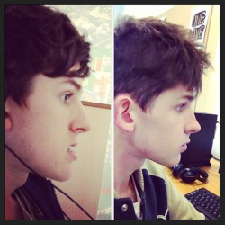 Before and after jaw op #surgery #underbite #boy #statigram #face #instaphoto