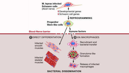 "Leprosy Bacteria Turn Nerve System Cells into Stem Cells The study, carried out in mice, found that in the early stages of infection, M. leprae were able to protect themselves from the body's immune system by hiding in the Schwann cells. Once the infection was fully established, the bacteria were able to convert the Schwann cells to become like stem cells. Like typical stem cells, these cells were pluripotent, meaning they could then become other cell types, for instance muscle cells. This enabled M. leprae to spread to tissues in the body. The study, published in the journal Cell, also shows that the bacteria-generated stem cells have unexpected characteristic. They can secrete specialized proteins – called chemokines – that attract immune cells, which in turn pick up the bacteria and spread the infection. ""We have found a new weapon in a bacteria's armory that enables them to spread effectively in the body by converting infected cells to stem cells. Greater understanding of how this occurs could help research to diagnose bacterial infectious diseases, such as leprosy, much earlier,"" said study lead author Prof Anura Rambukkana, Medical Research Council Center for Regenerative Medicine at the University of Edinburgh. ""This is very intriguing as it is the first time that we have seen that functional adult tissue cells can be reprogrammed into stem cells by natural bacterial infection, which also does not carry the risk of creating tumorous cells. Potentially you could use the bacteria to change the flexibility of cells, turning them into stem cells and then use the standard antibiotics to kill the bacteria completely so that the cells could then be transplanted safely to tissue that has been damaged by degenerative disease."" Dr Rob Buckle, Head of Regenerative Medicine at the Medical Research Council Center for Regenerative Medicine at the University of Edinburgh, said: ""this ground-breaking new research shows that bacteria are able to sneak under the radar of the immune system by hijacking a naturally occurring mechanism to 'reprogramme' cells to make them look and behave like stem cells. This discovery is important not just for our understanding and treatment of bacterial disease, but for the rapidly progressing field of regenerative medicine. In future, this knowledge may help scientists to improve the safety and utility of lab-produced pluripotent stem cells and help drive the development of new regenerative therapies for a range of human diseases, which are currently impossible to treat."" The scientists believe mechanisms used by leprosy bacteria could exist in other infectious diseases. Knowledge of this newly discovered tactic used by bacteria to spread infection could help research to improve treatments and earlier diagnosis of infectious diseases."
