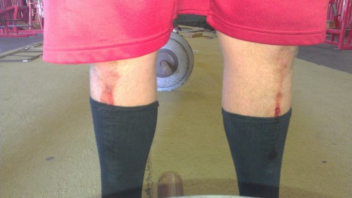 yeahgetbig:  Marks of a deadlifter.  I knew I wasn't the only one who had deadlift scars…