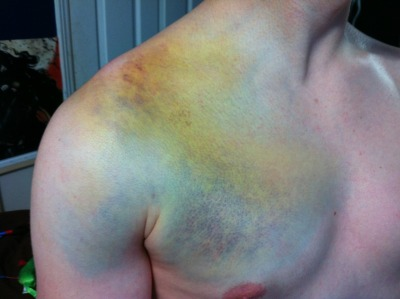 lessons-in-gore:  Bruise from a snowboarding accident that involved a collarbone broken in two places and a dislocated shoulder.