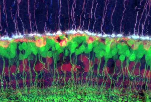 "scienceyoucanlove:   Retinal Neurons By Rachel Wong, University of Washington The mature retina contains five classes of neurons: photoreceptors (purple), horizontal cells (yellow), bipolar neurons (green), amacrine cells (pink and blue), and ganglion cells (pink and blue). The outersegments of the cone photoreceptors point up, into the retinal pigmented epithelium, and their axons point down, terminating in end feet (white) that form synapses with horizontal (yellow) and bipolar neurons (green). Bipolar cells connect photoreceptors directly to the ganglion cells, which transmit visual information to the brain, or to amacrine cells, which modulate the output of the bipolar cells. Image: In this cross section of an adult mouse retina, only a subset of bipolar cells, ""the ON bipolar cells"" are visible by their expression of GFP. The pink and blue speckled striations at the bottom of the image mark the fiber layer, which contains the ganglion cell axons that will form the optic nerve. source"